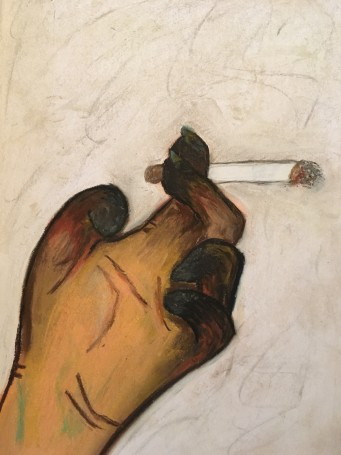 gangrene-smoking-hand-1